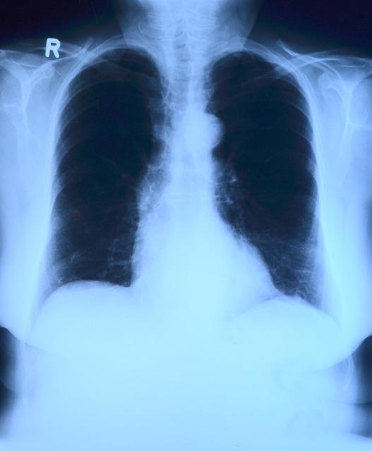 x-ray-image-568241_640