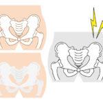 パンツなどの下着でウエストを締め付けると骨盤内臓器の血液循環が悪くなる